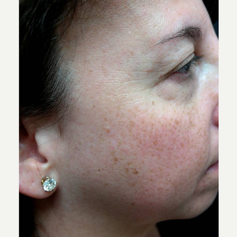 45-54 year old woman treated with Photofacial before 3252879