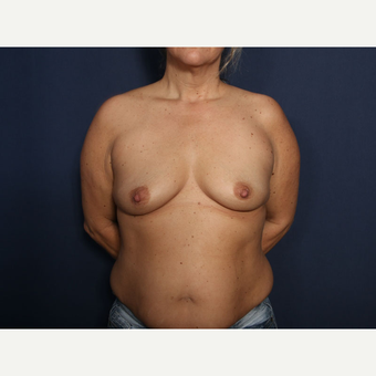 35-44 year old woman treated with Breast Augmentation (view 1 of 2) before 3788261