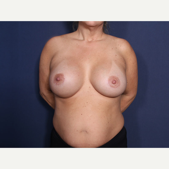 35-44 year old woman treated with Breast Augmentation (view 1 of 2) after 3788261