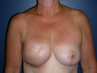 Breast Reconstruction-Fat Grafting