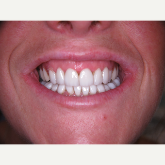 35-44 year old woman treated with Porcelain Veneers after 3263934