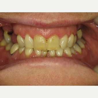 35-44 year old woman treated with Porcelain Veneers before 3263934