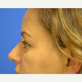 45-54 year old woman treated with Eyelid Surgery before 3421284