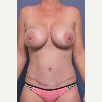 35-44 year old woman treated with Mommy Makeover after 3766772