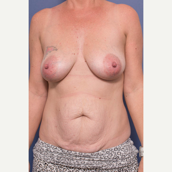 35-44 year old woman treated with Mommy Makeover before 3766772