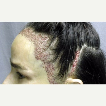 45-54 year old woman treated with Forehead Reduction with Hair Transplant before 1973882