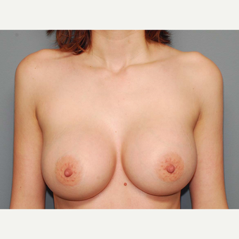 27 y/o Dual Plane Breast Augmentation after 3065848