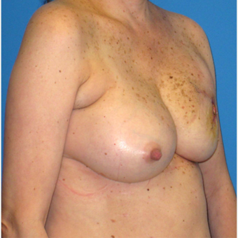 55-64 year old woman treated with Breast Reconstruction before 3266433