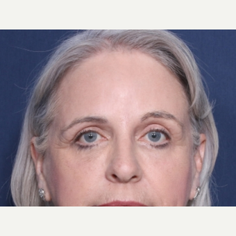 55-64 year old woman treated with Eyelid Surgery after 3180331