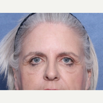 55-64 year old woman treated with Eyelid Surgery before 3180331