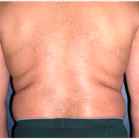 45 year old man treated with Liposuction before 3721127