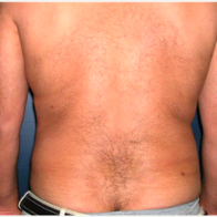 45 year old man treated with Liposuction after 3721127