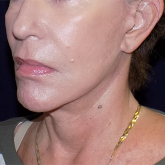 65-74 year old woman treated with MACS Facelift after 3426514