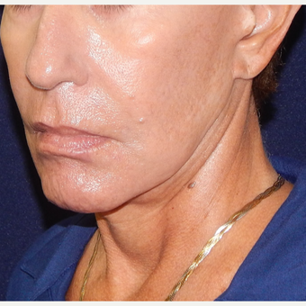 65-74 year old woman treated with MACS Facelift before 3426514