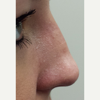 18-24 year old woman treated with Nose Surgery after 3840949