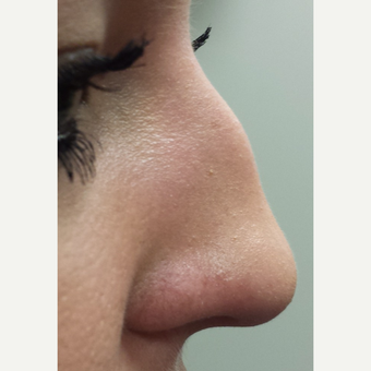 18-24 year old woman treated with Nose Surgery before 3840949