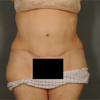 55-64 year old woman treated with Tummy Tuck after 3423666