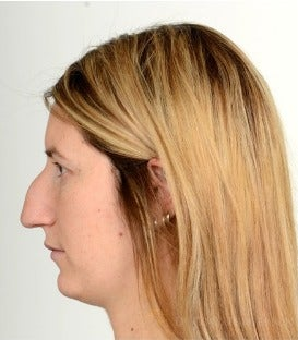 25-34 year old woman treated with Rhinoplasty before 3259527