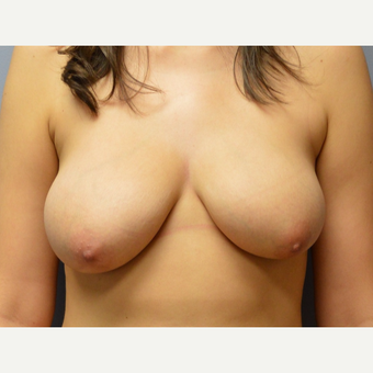 25-34 year old woman treated with Breast Reduction before 3167282