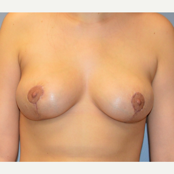 25-34 year old woman treated with Breast Reduction after 3167282