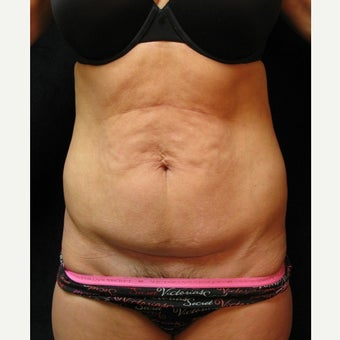 Tummy Tuck before 2410832