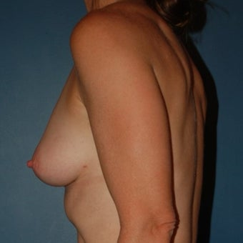35-44 year old woman treated with Breast Fat Transfer 1570015
