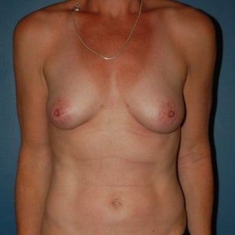 35-44 year old woman treated with Breast Fat Transfer after 1570015