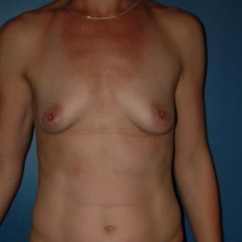 35-44 year old woman treated with Breast Fat Transfer before 1570015