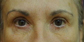 Fractionated CO2 Laser Treatment for Facial Wrinkles and Aging before 902540