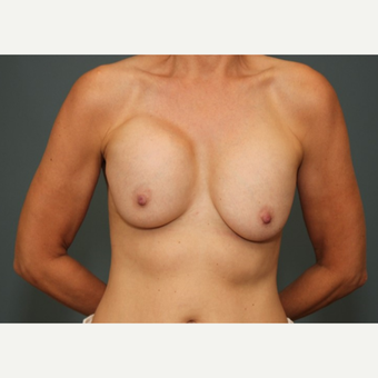 45-54 year old woman requesting Breast Implant Revision before 3782924
