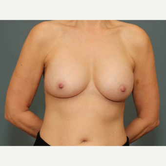 45-54 year old woman requesting Breast Implant Revision after 3782924