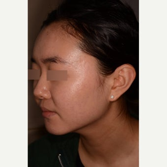 Treatment of severe nodulocystic acne; no Accutane 1826289