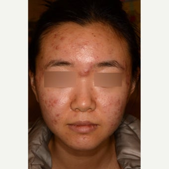 Treatment of severe nodulocystic acne; no Accutane before 1826289