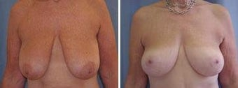 61 years old / breast reduction before 343929