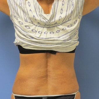 45-54 year old woman treated with Laser Liposuction/Smart Lipo after 1569688