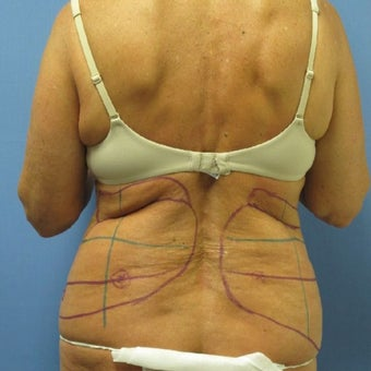 45-54 year old woman treated with Laser Liposuction/Smart Lipo before 1569688