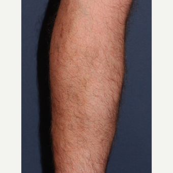 45-54 year old man treated with Sclerotherapy after 2182006