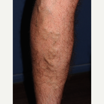 45-54 year old man treated with Sclerotherapy before 2182006