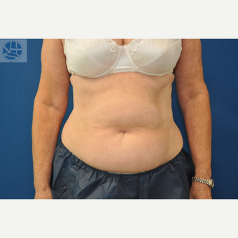 35-44 year old woman treated with CoolSculpting after 3650009