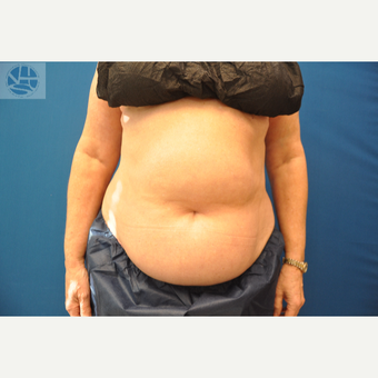 35-44 year old woman treated with CoolSculpting before 3650009