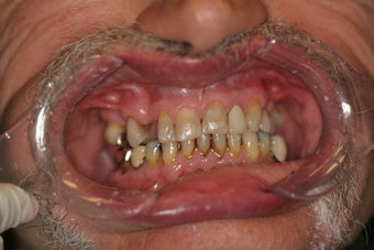 60 year old male treated with All-on-4 Dental Implant Procedure before 1053453