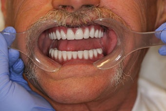 60 year old male treated with All-on-4 Dental Implant Procedure after 1053453