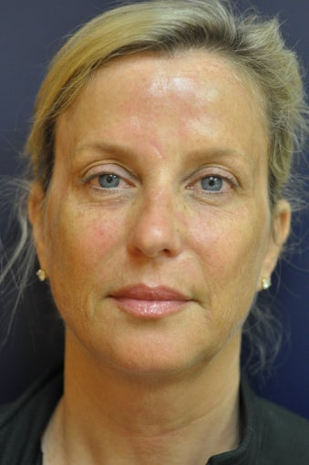 Ultherapy after 982040