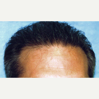 25-34 year old man treated with Hair Transplant after 3187082