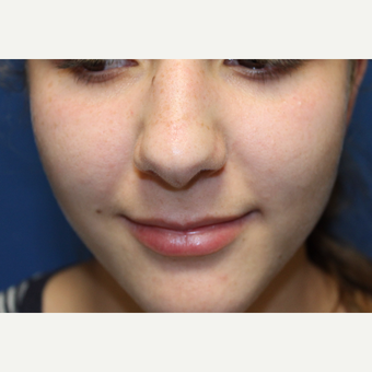 15 year old girl treated with Mole Removal from nose
