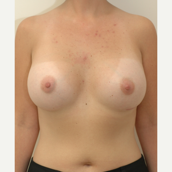 25-34 year old woman treated with Breast Implants after 3854919