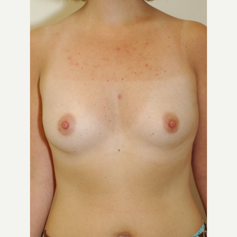 25-34 year old woman treated with Breast Implants before 3854919
