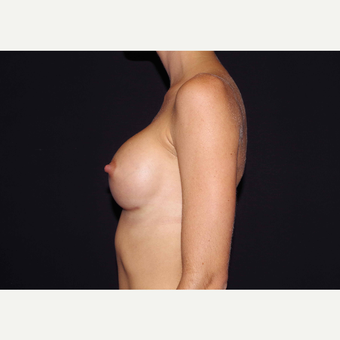 25-34 year old woman treated with Breast Implants after 3440994