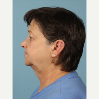 55-64 year old woman treated with Facelift before 3617706