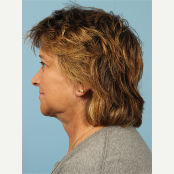55-64 year old woman treated with Facelift after 3617706